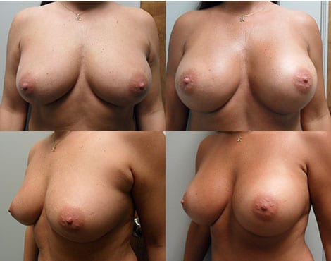 Breast Augmentation Before and After Photos - Case 5
