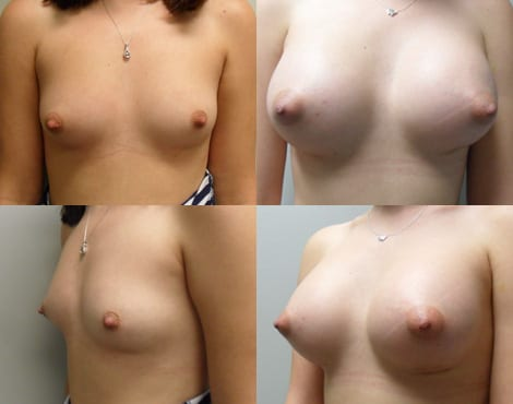 Breast Augmentation Before and After Photos - Case 6