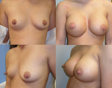 Breast Augmentation Before and After Photos - Case 7