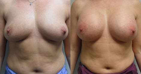 Breast Augmentation Before and After Photos - Case 8
