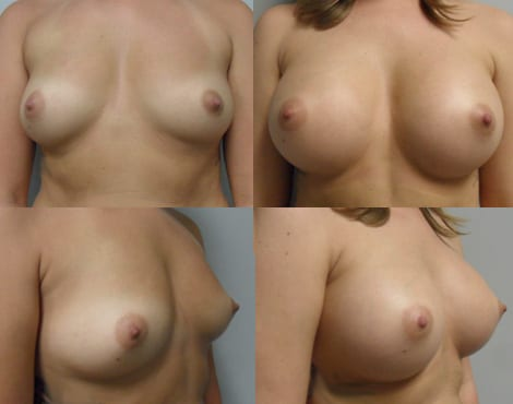 Breast Augmentation Before and After Photos - Case 3