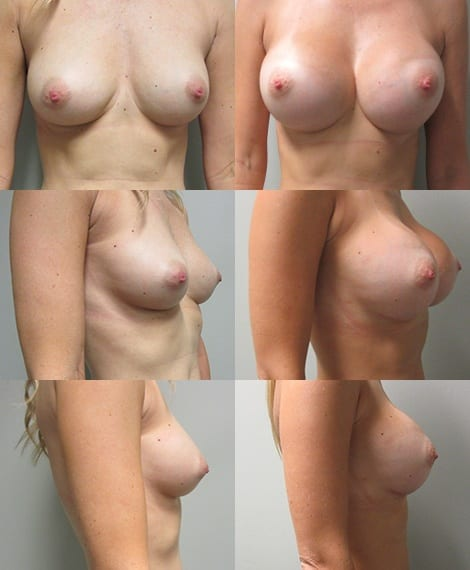 Breast Augmentation Before and After Photos - Case 1