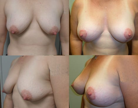 Breast Lift Before and After Photos - Case 2