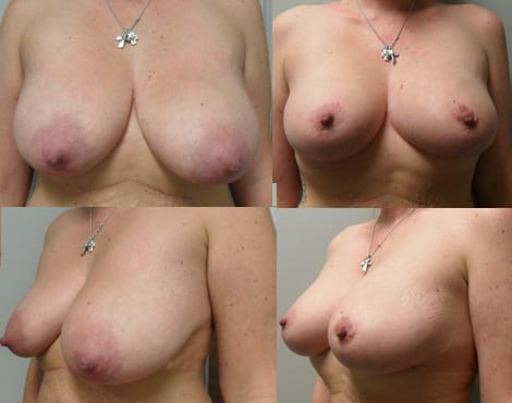 Breast Lift Before and After Photos - Case 3