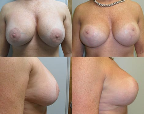 Breast Lift Before and After Photos - Case 4
