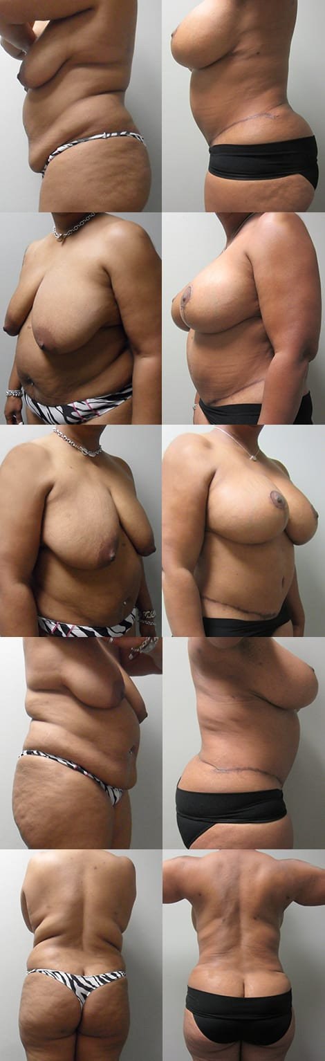Breast Lift Before and After Photos - Case 5