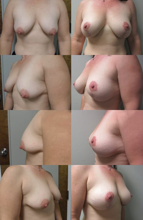Breast Lift Before and After Photos - Case 6