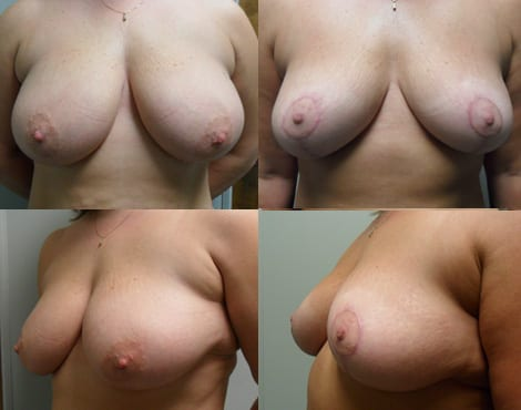 Breast Reduction Fort Worth