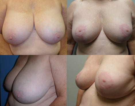 Breast Reduction Fort Worth Case 2