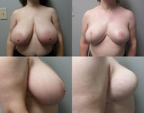 Breast Reduction Fort Worth Case 4
