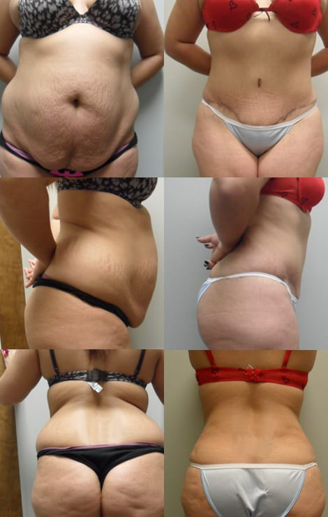 Tummy Tuck Fort Worth Case 1