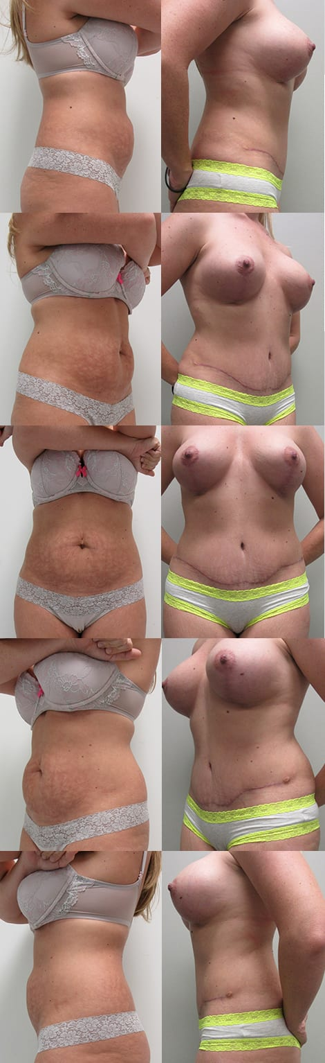 Tummy Tuck Before and After Photos - Case 3