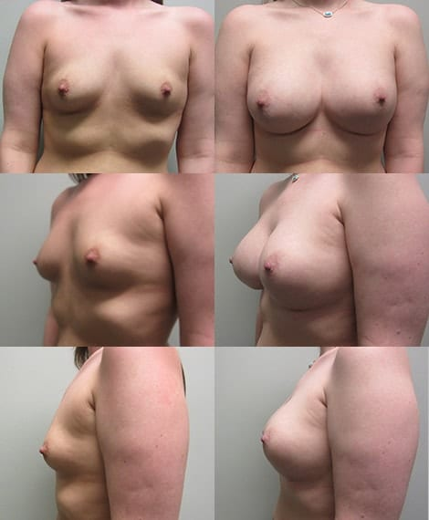 Breast Augmentation Before and After Photos - Case 2