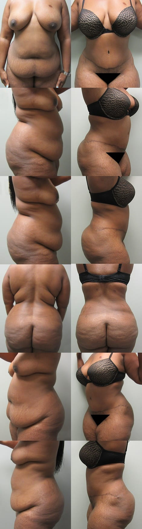 Tummy Tuck Before and After Photos - Case 1