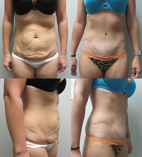 Tummy Tuck Before and After Photos - Case 7