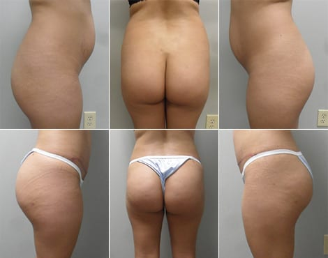 Brazilian Butt Lift Before and After Photos - Case 3