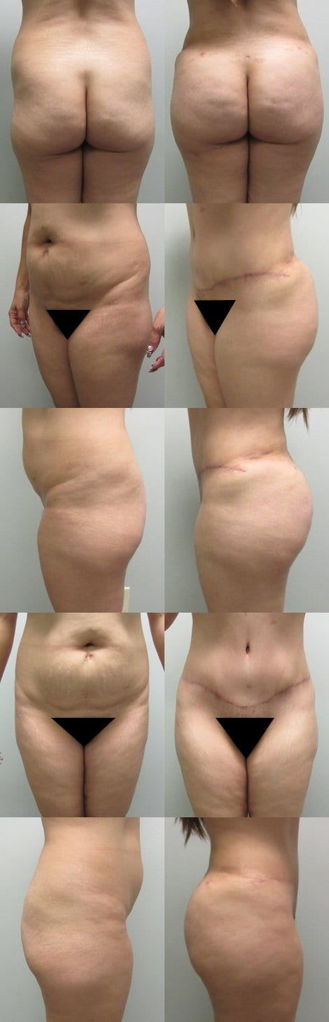Brazilian Butt Lift Before and After Photos - Case 2