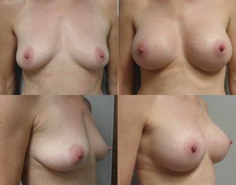 Breast Augmentation Before and After Photos - Case 4