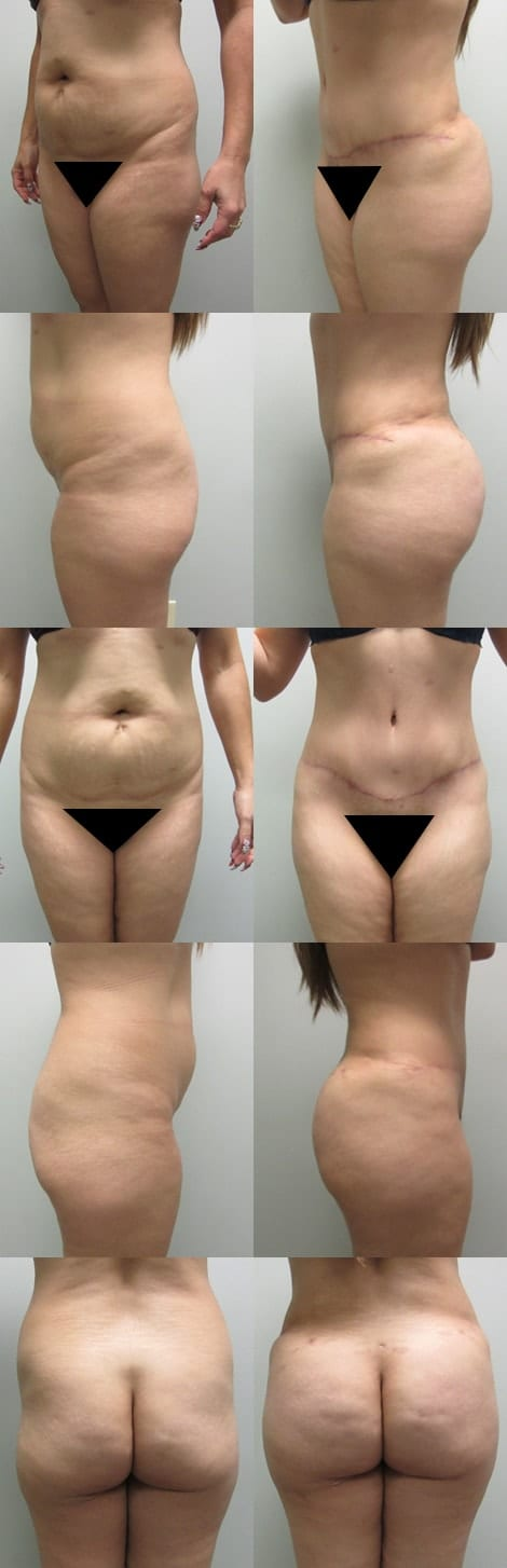 Tummy Tuck Before and After Photos - Case 5