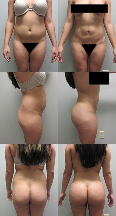 Brazilian Butt Lift Before and After Photos - Case 1