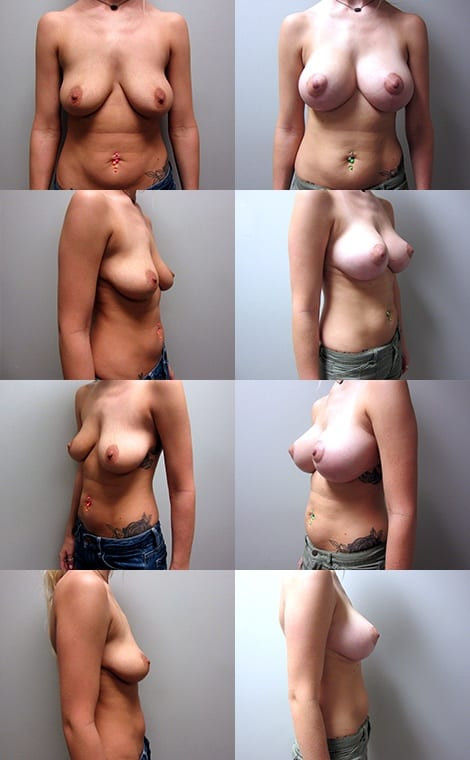 Breast Lift Before and After Photos - Case 1