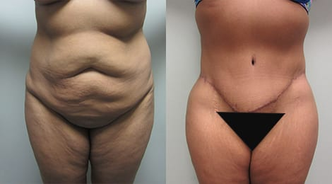 Tummy Tuck Before and After Photos - Case 8