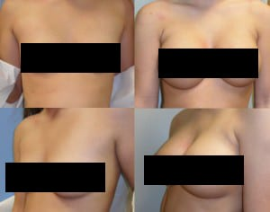 fort worth breast augmentation